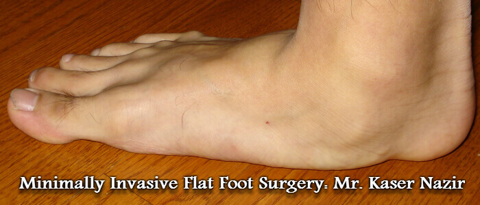 Invasive Flat Foot