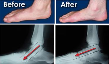 Flat Foot Operation