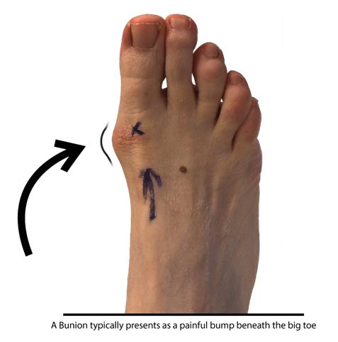 Bunion - Foot Problem