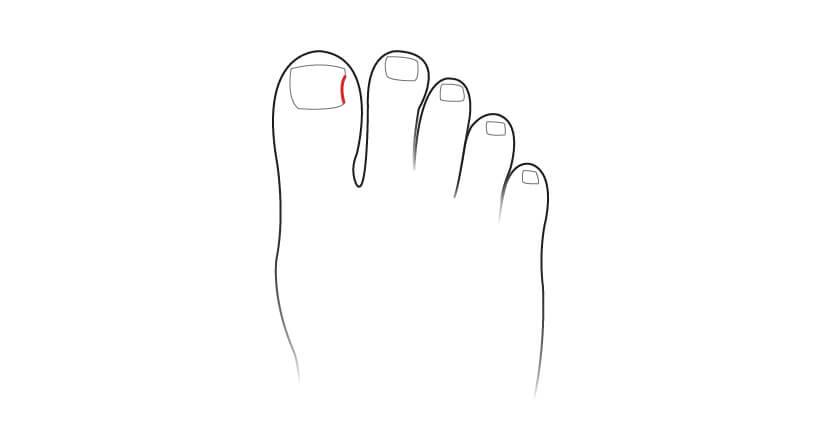 Ingrown Toe Nail