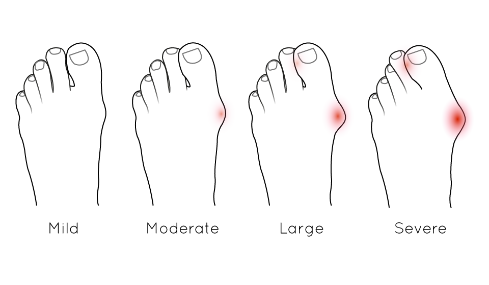 bunion severity examples